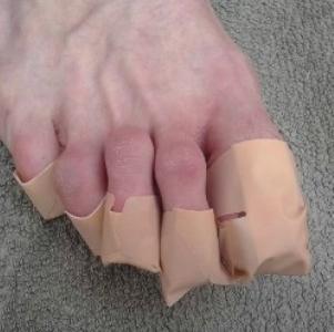 Применение Йодинола при грибке ногтей