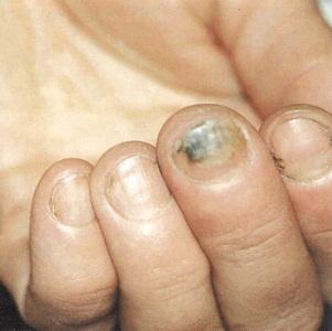 Современные методы лечения грибка ногтей