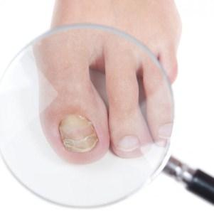 Какой врач лечит болезни ногтей, специфика работы специалиста