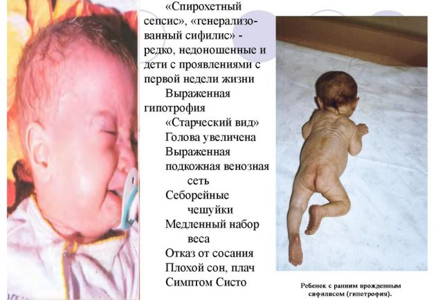 Сифилис у новорожденного ребенка