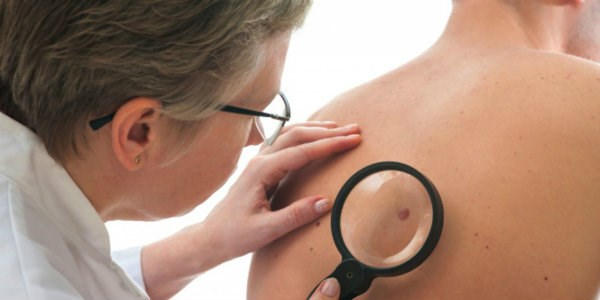 Что такое ВПЧ: особенности проявления у мужчин
