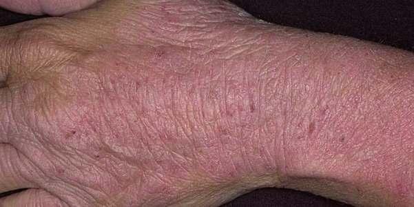 Как избавиться от зудящего дерматита