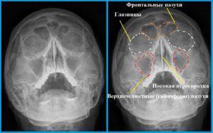 Вид гайморита на рентгеновском снимке