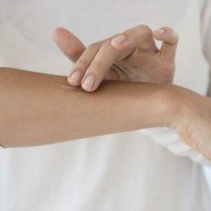 Какие мази и кремы помогают от сыпи