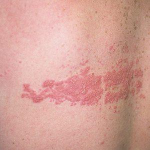Опоясывающий лишай (Herpes zoster): симптомы и лечение