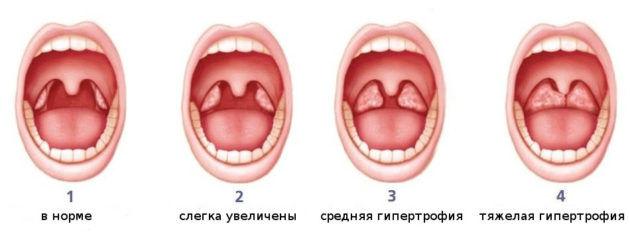 Гипертрофия миндалин степени