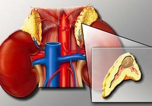 врожденная гиперплазия коры надпочечников