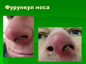 Фурункул в носу внутри и на крыле: лечение и осложнения