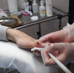 💉Вирус папилломы человека высокого онкогенного риска: как диагностировать и лечить