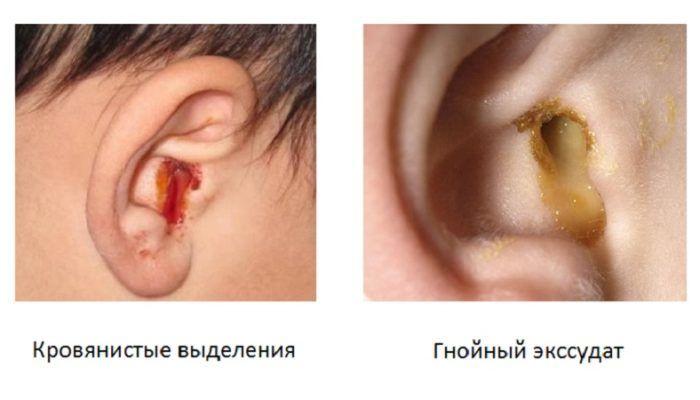Выделения из ушей