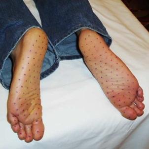 Причины гипергидроза стоп, эффективные методы медицинского и народного лечения