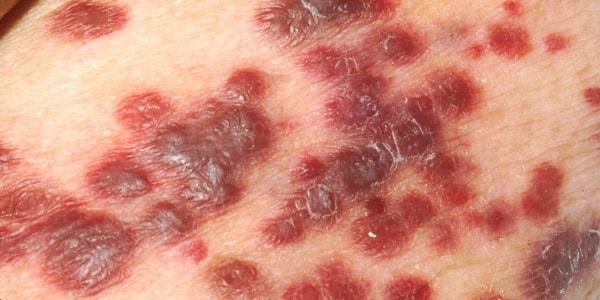 Сыпь после приема антибиотиков: что предпринять