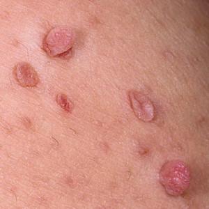 Причины появления, симптомы и лечение папиллом при беременности