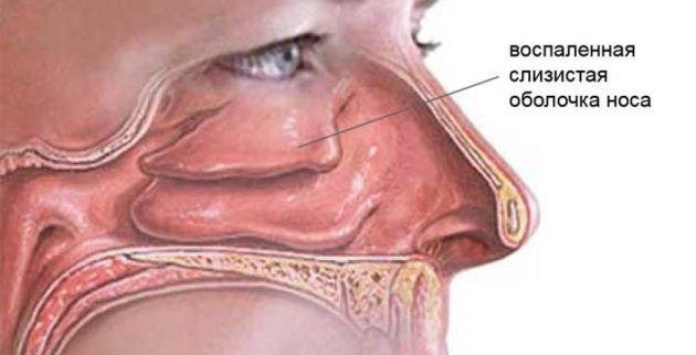Гнойные воспаления слизистой носа