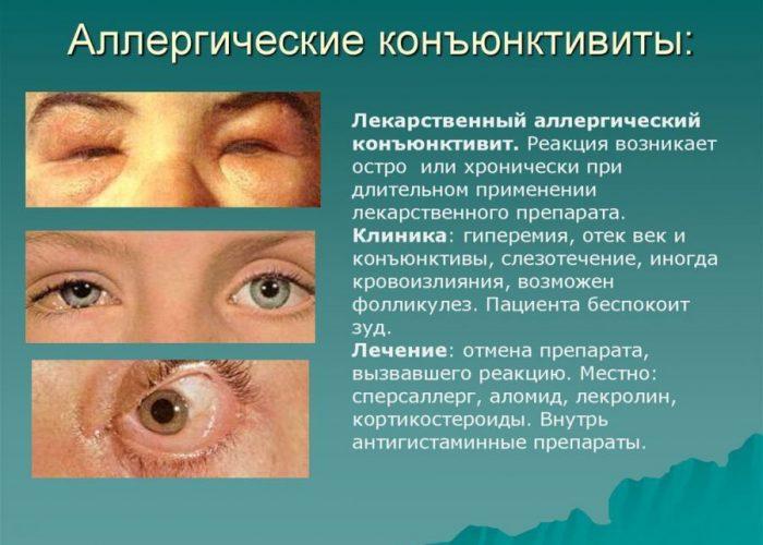 Конъюнктивит аллергического происхождения