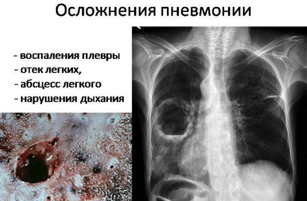 Пневмония бактериального происхождения