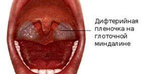 Субтоксическая форма дифтерии
