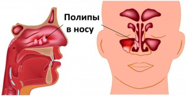 Полипы носа