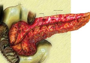 чем лечить панкреатит поджелудочной железы