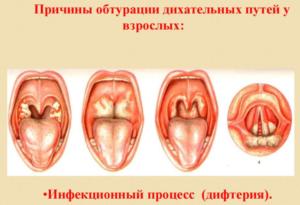 Дифтерия у взрослых