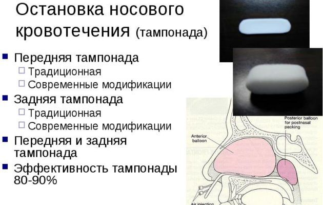 Эффективность тампонады 80-90%