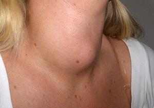 щитовидная железа диффузный зоб