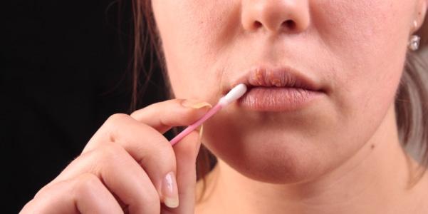 Крем от простуды на губах