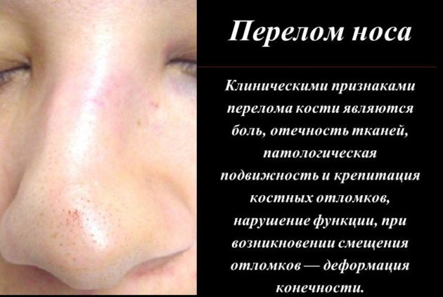 Прелом носа