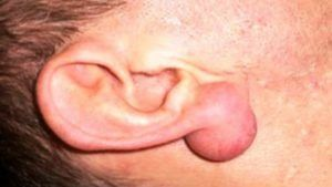 Атерома в мочке уха