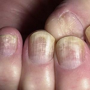 Эффективные методы лечения грибка ногтей народными средствами