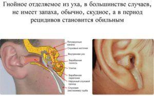Выделения из уха при гнойном отите