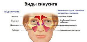 Чем отличаются синусит и гайморит, или это одно и тоже?