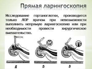 Прямая ларингоскопия