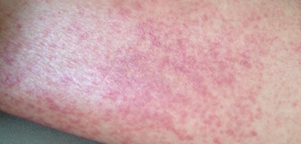 Токсикодермия: симптоматика и как болезнь выглядит