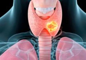 рак щитовидной железы симптомы у женщин