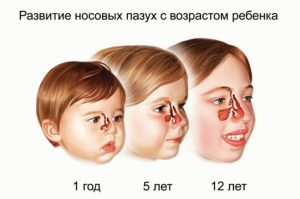 Развитие носовых пазух с возрастом ребенка