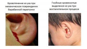При поврежденной перепонки, использование фурацилинового раствора, строго запрещено
