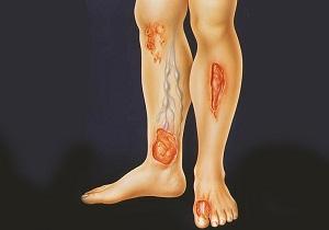 язвы на ногах при сахарном диабете