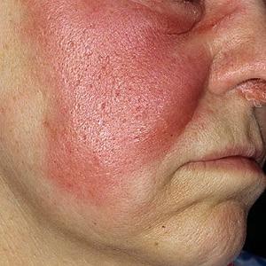 Симптомы и особенности лечения рожистого воспаления кожи