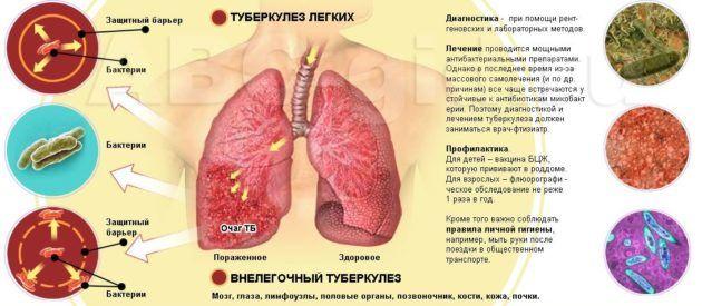 Туберкузел легких может возникнуть после атрофического ринита
