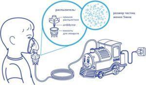 Схема работы небулайзера