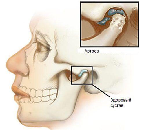 Так же одной из причн странного щелканья в ушах может стать артроз