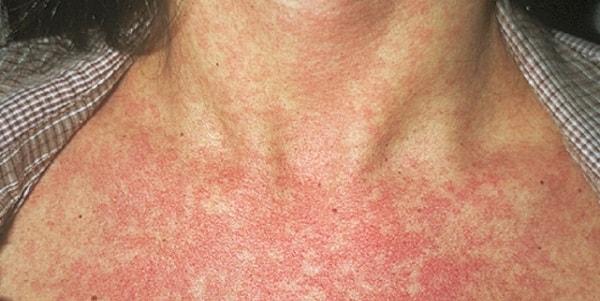 Заболевания кожи на нервной почве