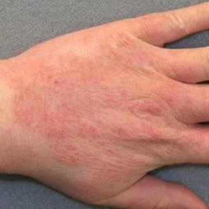 Правила лечения дерматита народными средствами