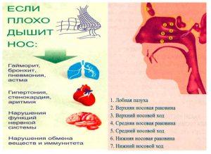 Вазотомия носа