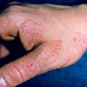 Характеристика противогрибкового препарата Сертамикол