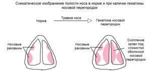 Схема полости носа в норме и при наличии гаматомы при ушибе