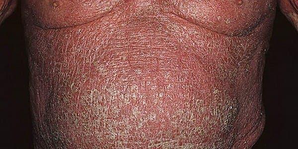 Разновидности и особенности лечения эритродермии