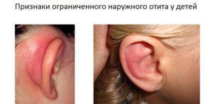 Камфорное масло в ухо — инструкция по применению