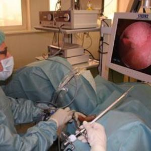 Виды, признаки и лечение папилломы мочевого пузыря